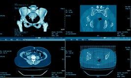 Ct-bildläsning av magen, medicinsk bakgrund Arkivbild