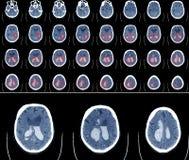 Ct-bildläsning för beräknad Tomography av hjärnan arkivfoto