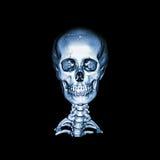 Ct-bildläsning med bilden 3D av den normala mänskliga skallen och den cervikala ryggen föregående - senare sikt AP Royaltyfria Bilder