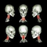Ct-bildläsning och bild 3D av skallen och halsen Använd denna bild för cervikal spondylosis, spondylolisthesis, spondylitisen, in Royaltyfri Foto