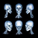 Ct-bildläsning och bild 3D Normal mänsklig skalle och cervikal rygg All riktning Royaltyfri Bild