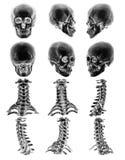 Ct-bildläsning & x28; Beräknad tomography & x29; med den normala mänskliga skallen för grafisk show 3D och den cervikala ryggen Arkivbilder
