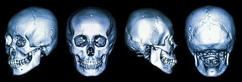 Ct-bildläsning av den mänskliga skallen och 3D Arkivbild