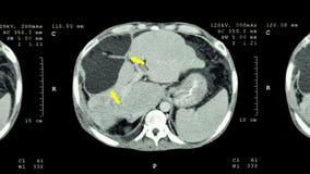 Ct-bildläsning av övremagen: visa onormal mass på lever (levercancer) Arkivfoton