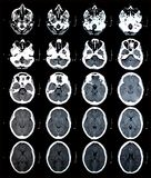 CT brain images. Series of images from a computerized tomography of the brain Royalty Free Stock Photography