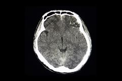 CT brain scan of a patient with bilateral hemorrhagic contusion. A CT brain scan of a traumatic patient with bilateral frontal-laterral hemorrhagic contusion stock photos