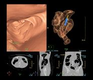 CT colonography is highly sensitive for colorectal cancer, 3D rendering image stock illustration