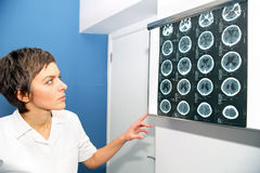 CT computed tomography of endocranium, CT of head Royalty Free Stock Photos
