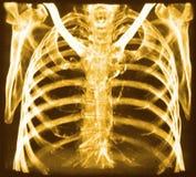 CT de los huesos del pecho foto de archivo libre de regalías