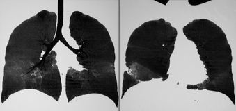 CT de thorax Photo stock