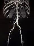 CT des récipients abdominaux et pelviens Image libre de droits