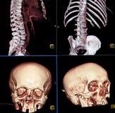 CT dos ossos do corpo e da cabeça foto de stock royalty free