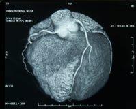 CT-Faça a varredura do coração Imagens de Stock Royalty Free