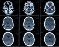 Ct-Fotographie des menschlichen Gehirns Stockbild