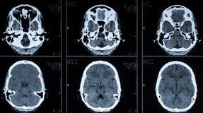Ct-Fotographie des menschlichen Gehirns Stockbilder