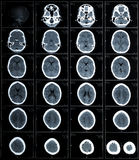 Ct-Fotographie des menschlichen Gehirns Lizenzfreie Stockbilder