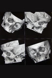 CT of head bones Stock Photography
