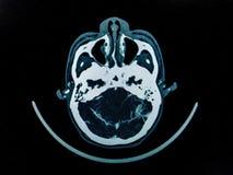 CT arkivfoton
