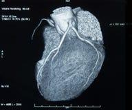 ct-hjärtabildläsning arkivfoto