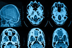 CT and MRI of the skull Royalty Free Stock Photo