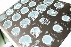 CT neurologische patiënt Stock Foto