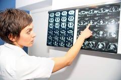 CT obliczał tomografię płuco, płucnej embolii PE Zdjęcia Stock