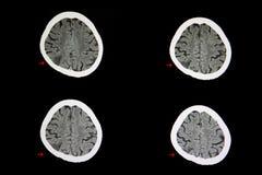 CT obrazu cyfrowego cerebralny infarction fotografia stock