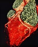 Ct obrazu cyfrowego 3d kierowa angiografia kolorowa obrazy stock