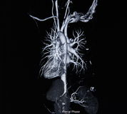 Ct scan angiogram (take photo from film x-ray). Ct scan angiogram 3D (take photo from film x-ray Stock Photo
