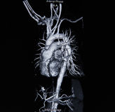 Ct scan angiogram (take photo from film x-ray) Stock Photography