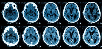 CT scan of brain, without and with contrast media. CT scan of brain, comparison between without and with contrast media stock images