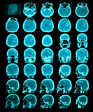 CT scan of the brain. Royalty Free Stock Photos