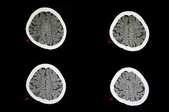 CT scan cerebral infarction. A CT scan of the brain of a patient with cerebral infarction showing a wedge shape hypodense lesion in the right parietal area stock photography