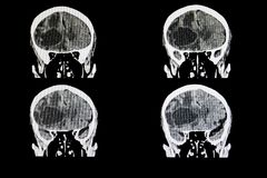 Metastatic brain tumor. CT scan of a brain of a patient with a large metastatic tumor royalty free stock photo