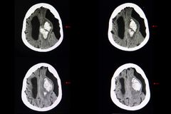 Brain CT scan, intracerebal hemorrhage and subarachnoid cyst. CT scan of the brain of a patient with stroke showing large blood clot in the brain parenchyma. A royalty free stock photography