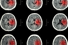 CT scan of brain with red area ( Imaging for hemorrhagic stroke or Ischemic stroke ( infarction ) concept ) Stock Images