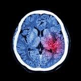 CT scan of brain show Ischemic Stroke or Hemorrhagic Stroke Stock Image