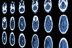 CT scan of brain show ischemic stroke and hemorrhagic stroke Stock Photos