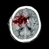 CT scan of brain : show old right basal ganglia hemorrhage with brain edema ( status post craniotomy ) ( Hemorrhagic stroke ) Royalty Free Stock Photography