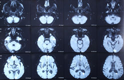 CT scan brain Royalty Free Stock Photography
