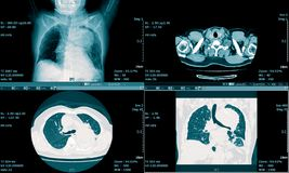 CT Scan of the chest. Medical background.  stock photos