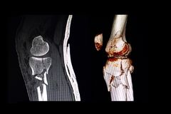 CT scan and 3D computer rendering images of a knee stock image
