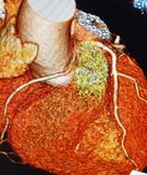Ct scan 3d  heart angiography  colorful Stock Photos