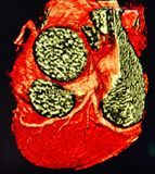 Ct scan 3d  heart angiography  colorful Stock Image