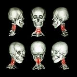 CT scan and 3D image of skull and neck . Use this image for cervical spondylosis , spondylolisthesis , spondylitis , spine trauma royalty free stock photo