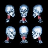 CT scan and 3D image of skull and neck . Use this image for cervical spondylosis , spondylolisthesis , spondylitis , spine trauma Royalty Free Stock Photography