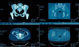 Ct-Scan des Unterleibs, medizinischer Hintergrund Stockfotografie