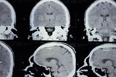 CT scan of the head Stock Photography