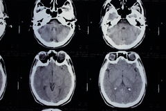CT scan of the head Stock Photos