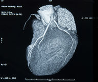 CT-Scan Heart. CT-scan of heart showing major arteries stock photo